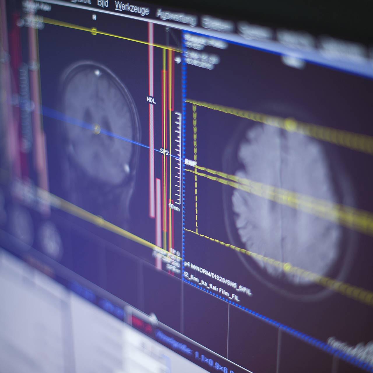 Radiologikum - Eppendorfer-Baum - Schmerztherapie