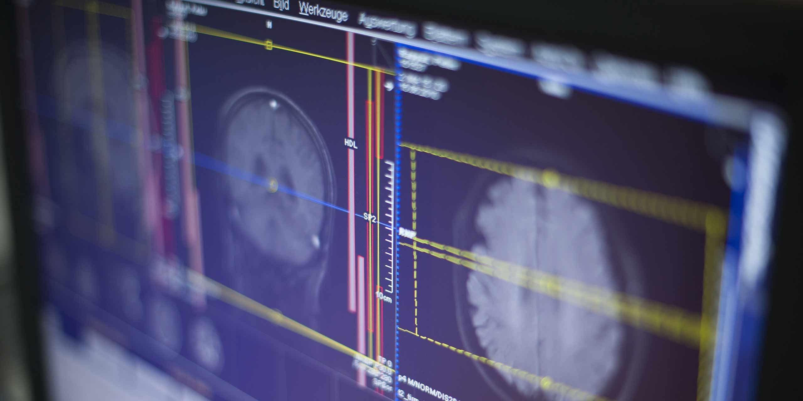 Radiologikum - Eppendorfer-Baum - Schmerztherapie der Wirbelsäule (PRT)